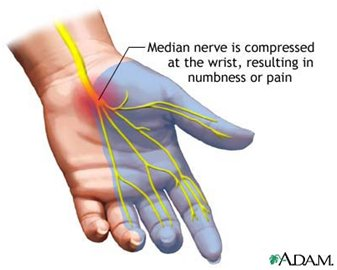 carpel-tunnel-syndrome-diagram